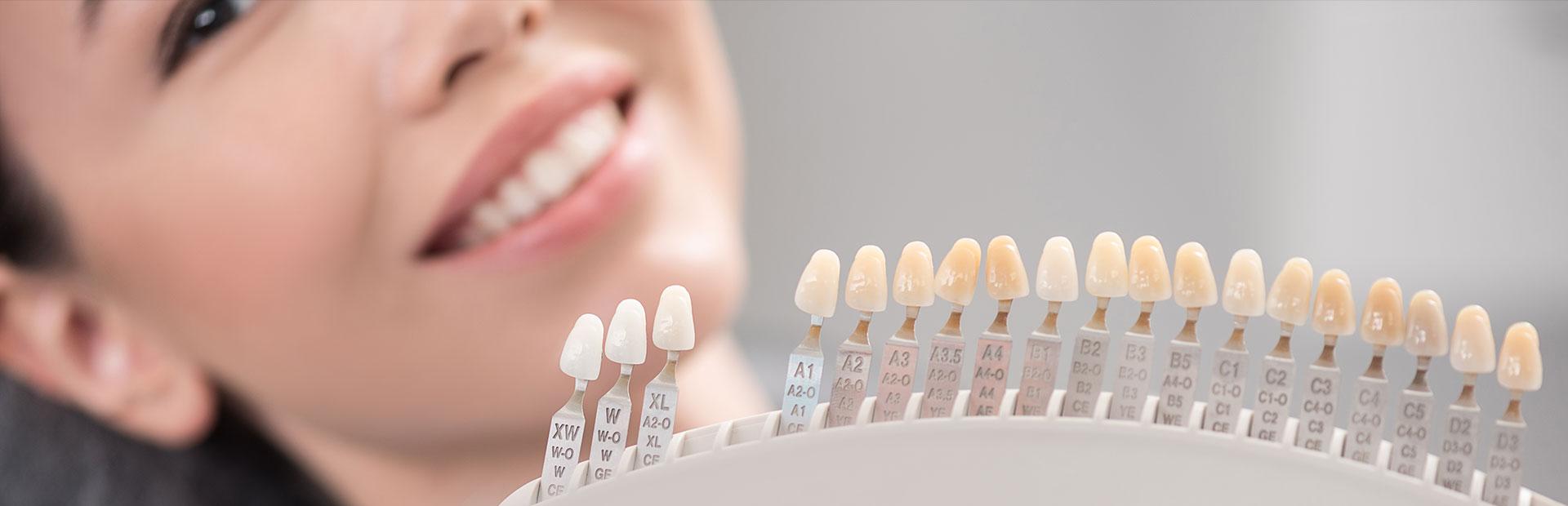 After having dental veneers